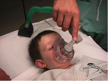 anestesia general en niños de tres años